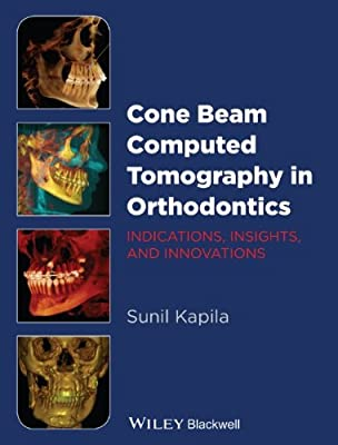 Cone Beam Computed Tomography in Orthodontics: Indications, Insights, and Innovations.pdf
